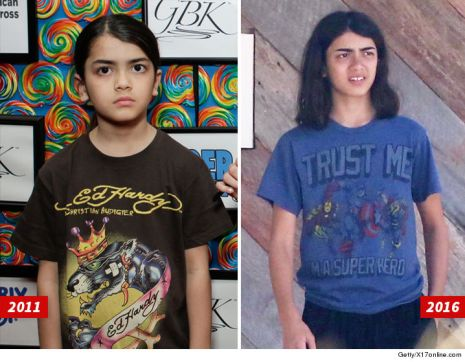 0919-blanket-jackson-before-and-after-older-getty-x17-7